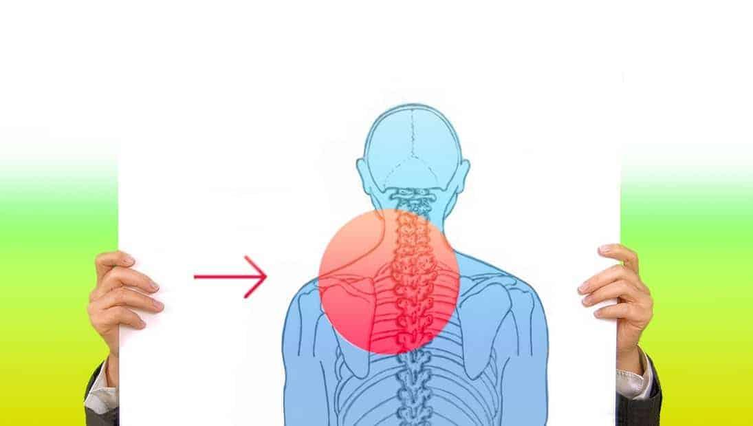 Bandscheibenvorfall im Halswirbel-Bereich – was nun? Operation oder Krankengymnastik?